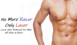 لیزر مو های زائد آقایان