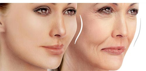تزریق ژل برای جوانسازی صورت